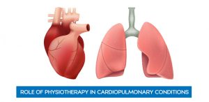 Role of Physiotherapy in Cardiopulmonary Conditions